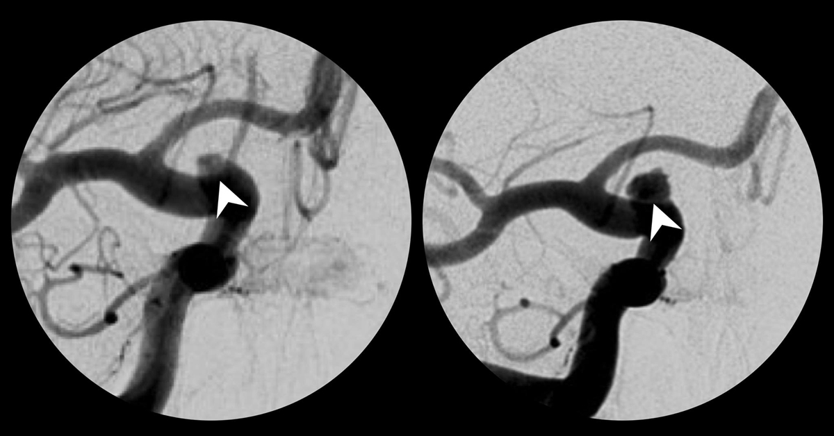 00_angiography